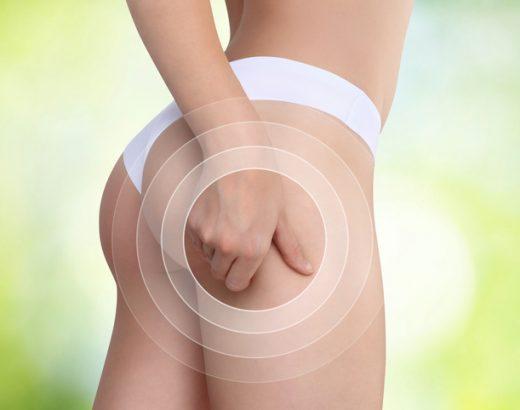 Combate la celulitis… ¡con estos tips!